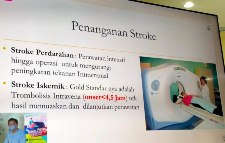 Penanganan pasien stroke dengan CT Scan kepala, diterapkan RSUD Tarakan. (foto: ilustrasi)
